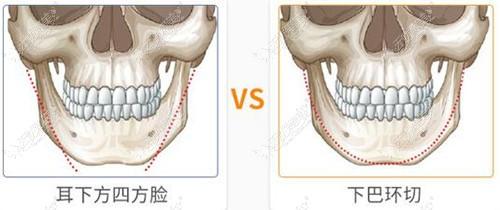 U型截骨和长曲线的区别