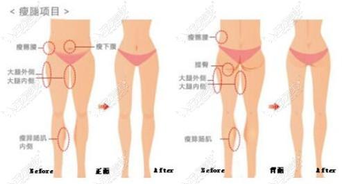腿部吸脂的部位