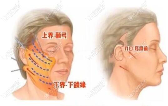 中下面部拉皮手术的切口一般在哪里,可通过手术步骤了解