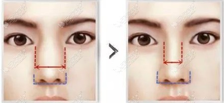 听说鼻骨内推可以增高鼻梁,为啥我做完3个月后鼻骨还是很宽