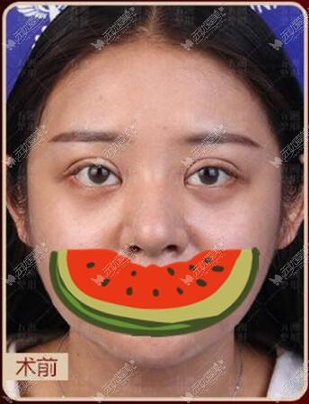 武汉严飞医生修复双眼皮疤痕黏连,可以做局部调整肉条感吗