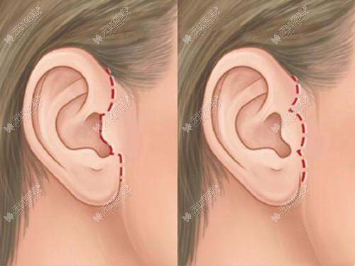 耳前下切口提升