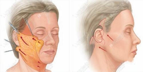 拉皮手术的刀口位置