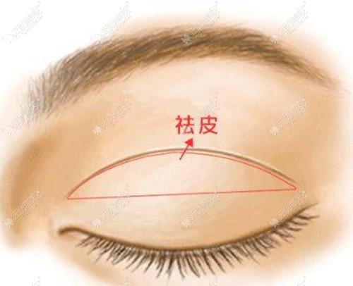 去皮去脂也会影响双眼皮的宽度