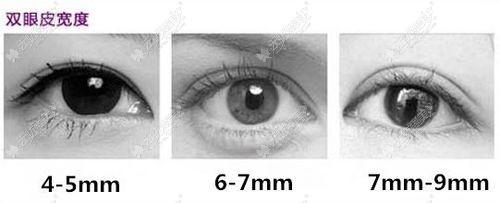 双眼皮的宽度