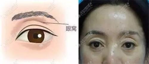 双美胶原蛋白可以填充眼部凹陷吗?我眼窝现在凹陷的很厉害