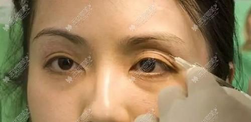 胶原蛋白填充眼窝凹陷