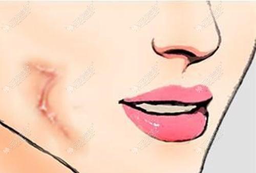 磨削术和点阵激光哪个祛疤效果好?