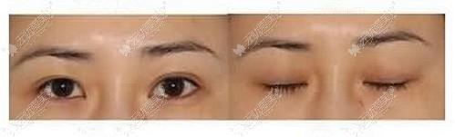 双眼皮失败修复前后对比图