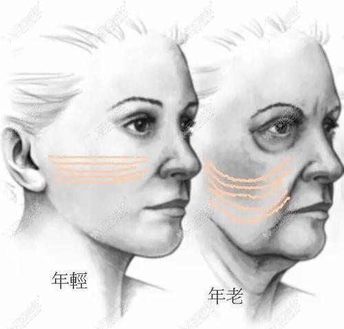 筋膜提升和拉皮的区别