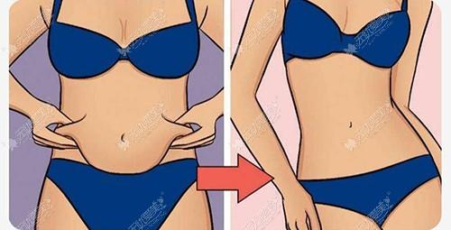 青岛诺美德医院腰腹吸脂效果不错,那吸脂一次就不会再胖了?