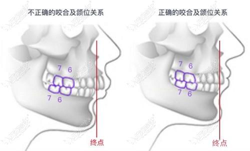明白造成下颌后缩的原因就知道改善是选正颌还是颏成型了