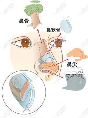 杜兰余医生做鼻子技术优势