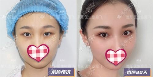 从杭州做眼综合的医生中选了张霞飞的贝塞尔眼综合,贵不?