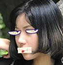 南阳华美王培生做肋骨隆鼻好不好,看了我术后图你就知道了