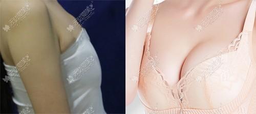 看了我做妙桃琴面假体隆胸前后对比图,你是不是也想去做啦