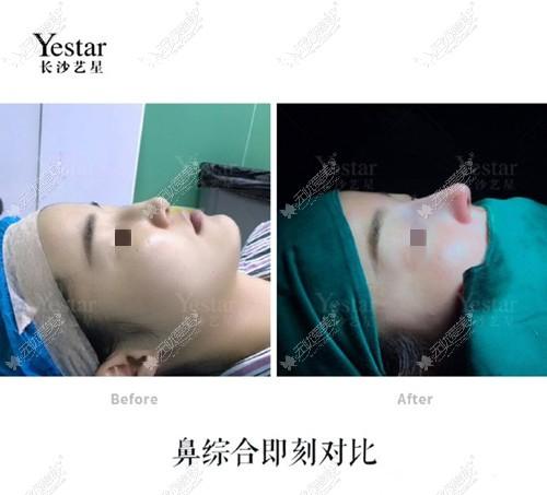 长沙艺星耳软骨鼻综合前后对比