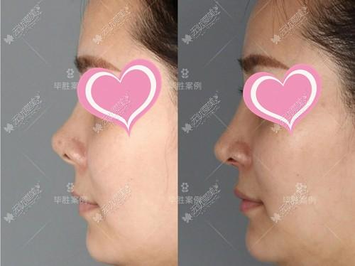 从重庆毕胜医生鼻修复效果就能看出他做的鼻子怎么样哦