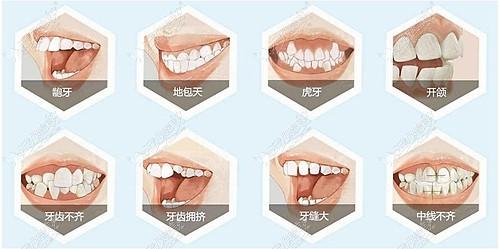 牙齿矫正的多种类型