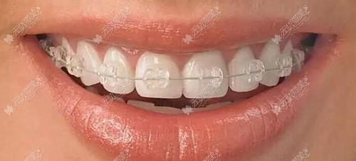 半透明陶瓷牙套的费用