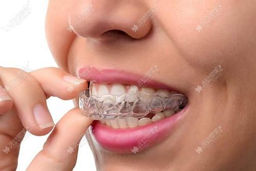 阜阳隐形牙套多少钱