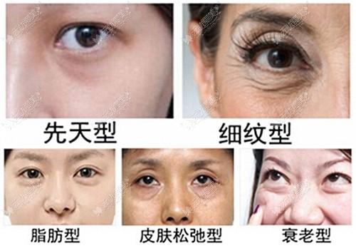 眼袋的不同类型