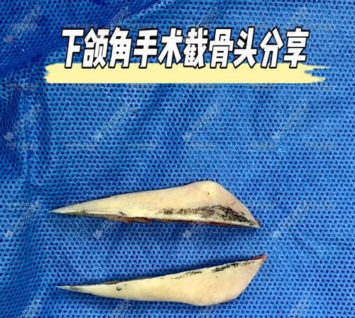 听说上海高伟做下颌角真不错,有他的磨骨实例对比图看看嘛