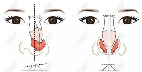 通过对比西安画美杨万忠的隆鼻修复示例图,了解做的怎么样