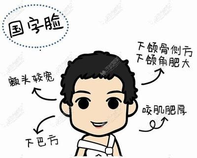 从上海穆雄铮磨骨实例图就能看出他做下颌角是什么风格