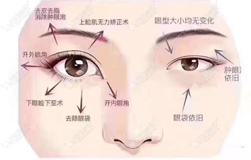 金华亚美整形割双眼皮做的好不好可以从眼综合技术中瞧出