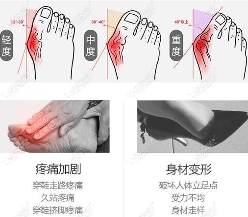 北京煤医马桂文医生做大脚骨费用是多少钱?我准备5万够不够
