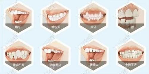 从石家庄牙博士正畸费用明细中看石家庄做牙齿矫正多少钱