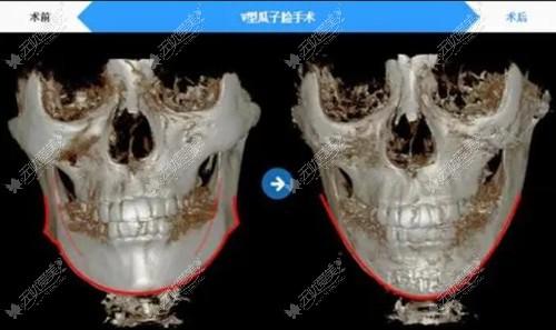 赵贵庆下颌角磨骨前后对比