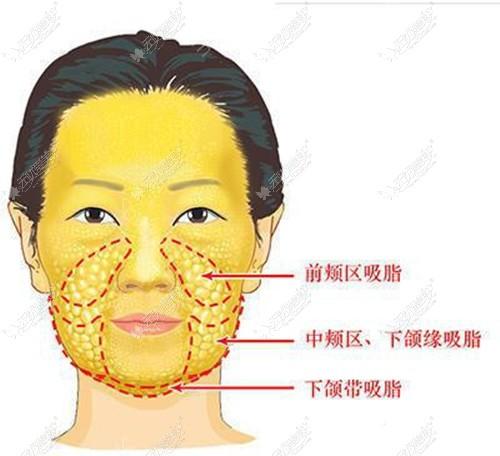 面部吸脂的部位
