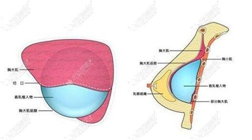 崔东隆胸技术口碑是真好