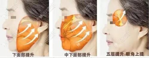 面部拉皮的部位