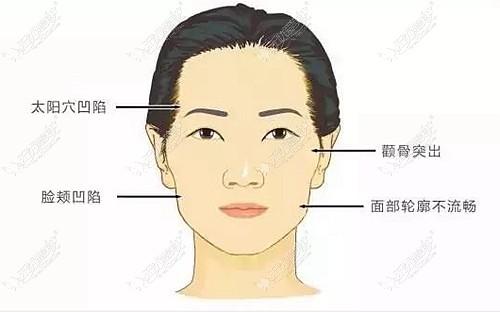全脸脂肪填充的部位