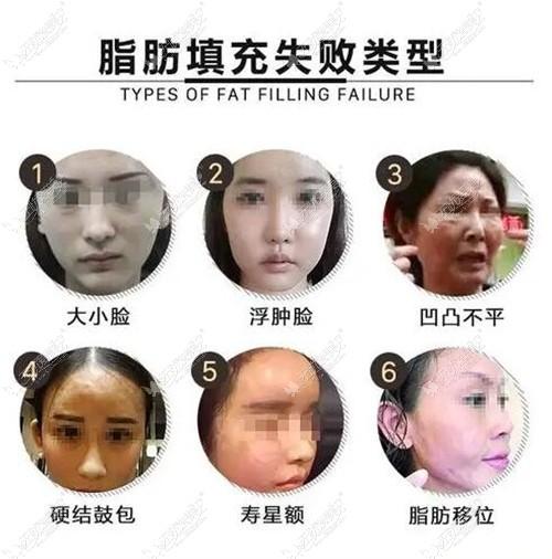 从北京艺美王东做的脂肪填充失败修复实例分析他技术咋样