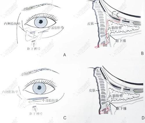 问哈尔滨做眼袋哪做得好,不如来看哈尔滨双燕做眼袋怎么样