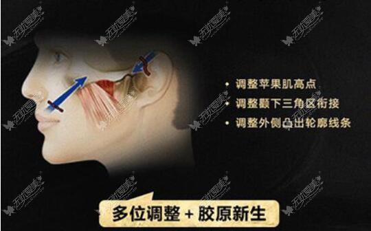 不开刀微创降颧骨是真的能缩小颧骨吗?担心会不会只是噱头
