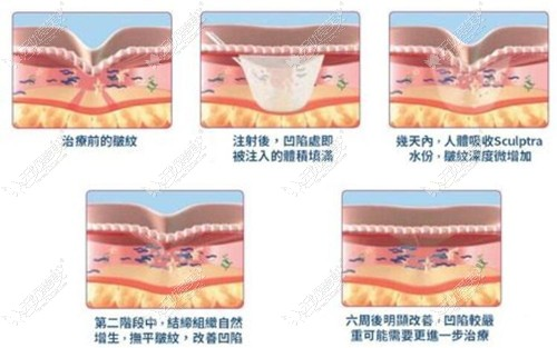 注射胶原蛋白后的变化