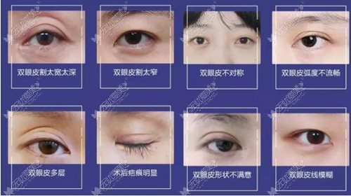 找杭州有名的双眼皮整形医生宋建良修复双眼皮要多少钱呢?