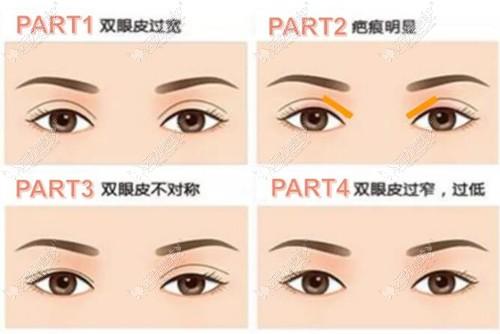 肉条感的双眼皮怎么修复