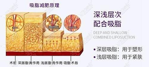 徐州华美做大腿吸脂的技术怎么样?看价格是怪便宜的