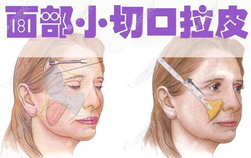 面部拉皮原理